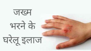 jakham bharne ke gharelu upay